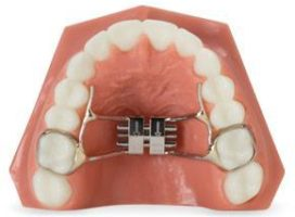 5 Keys for Early Palatal Expansion Appliances