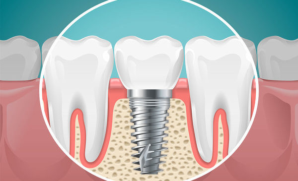 Dental Implant Timeline: What to Expect